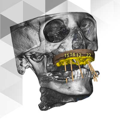 Dreidimensionale digitale Röntgentechnik in der Zahnarztpraxis Alte Schmiede in Augsburg