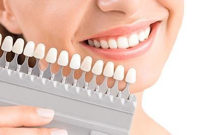Ästhetische Zahnmedizin wie Zahnaufhellung (Bleaching) oder Korrekturen